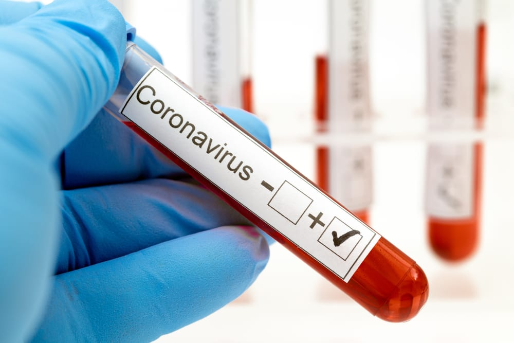 Can A Startup Fill The Coronavirus Testing Gap?