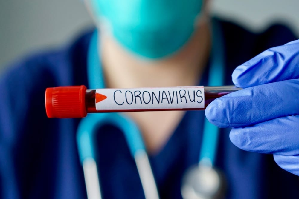 Sequoia Capital warned of serious effects due to the coronavirus.